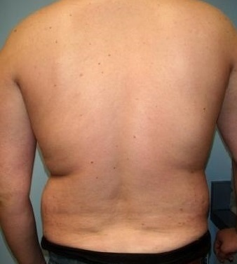 Biologická liposukce - boky